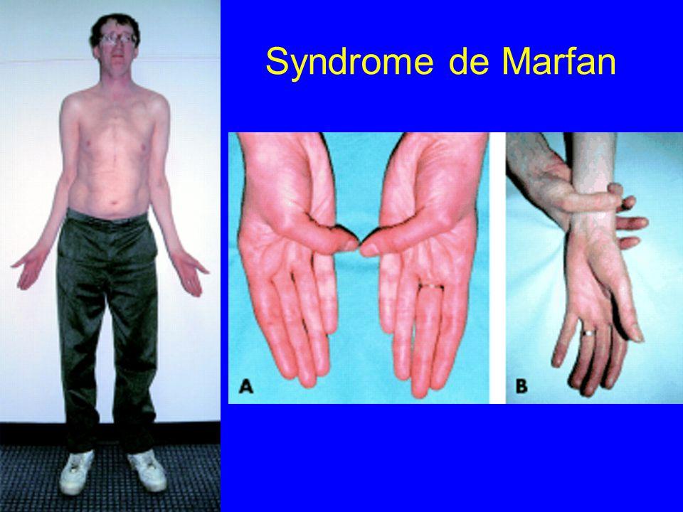 Syndrome de Marfan