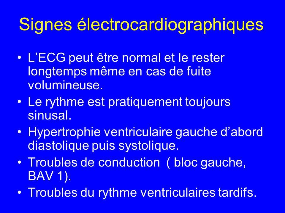 Signes électrocardiographiques LECG peut être normal et le rester longtemps même en cas de fuite volumineuse. Le rythme est pratiquement toujours sinu