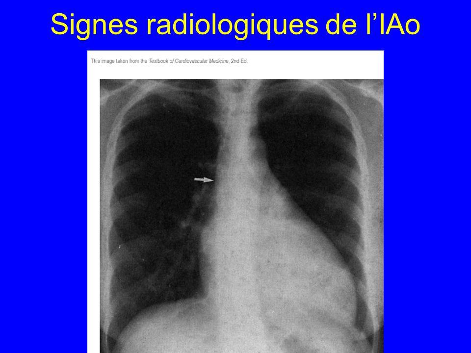 Signes radiologiques de lIAo
