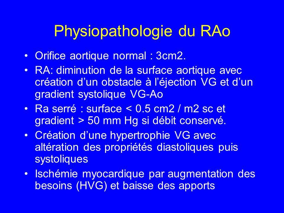 Physiopathologie du RAo Orifice aortique normal : 3cm2. RA: diminution de la surface aortique avec création dun obstacle à léjection VG et dun gradien