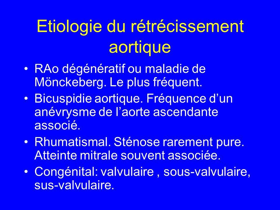 Etiologie du rétrécissement aortique RAo dégénératif ou maladie de Mönckeberg. Le plus fréquent. Bicuspidie aortique. Fréquence dun anévrysme de laort