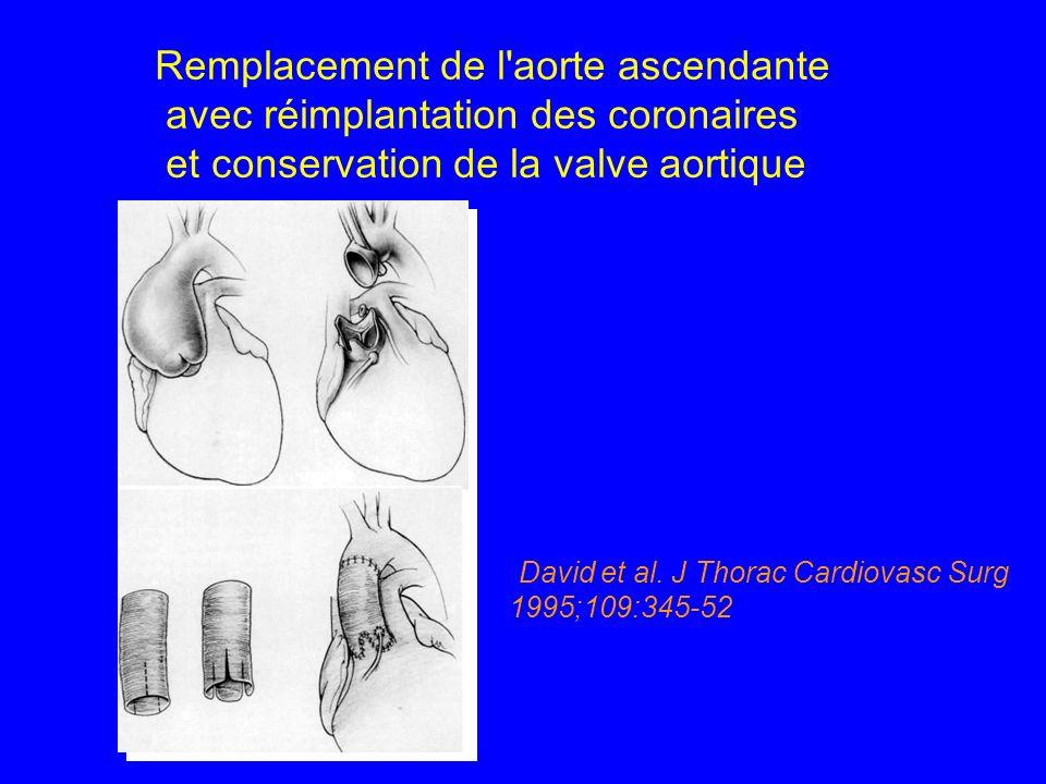 Remplacement de l'aorte ascendante avec réimplantation des coronaires et conservation de la valve aortique (David et al. J Thorac Cardiovasc Surg 1995