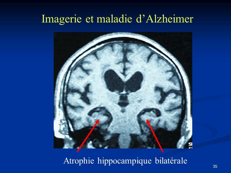 35 Imagerie et maladie dAlzheimer Atrophie hippocampique bilatérale
