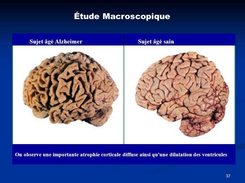 37 Étude Macroscopique Sujet âgé AlzheimerSujet âgé sain On observe une importante atrophie corticale diffuse ainsi qu'une dilatation des ventricules
