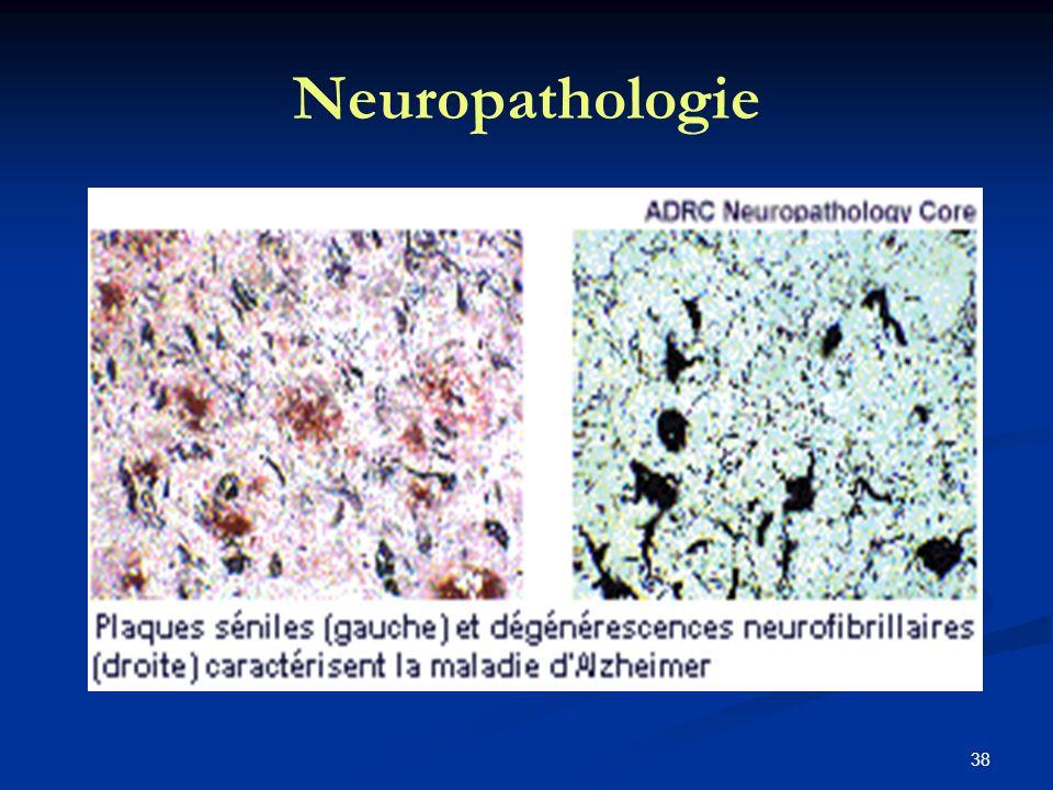 38 Neuropathologie