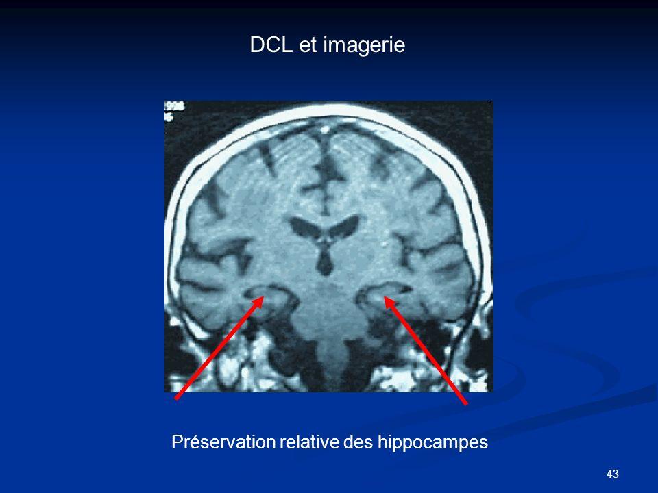 43 Préservation relative des hippocampes DCL et imagerie