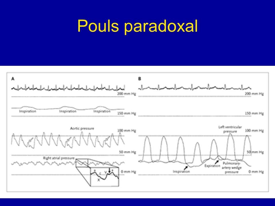 Pouls paradoxal