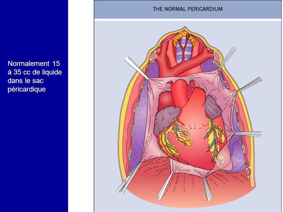Diagnostic étiologique Péricardites autonomes –Idiopathique –Virale (coxsackie, grippe, adénovirus, entérovirus,mononucléose, HIV ) –Rhumatismale –Septique –Tuberculeuse –Collagénose Péricardites secondaires –Cancer (habituellement secondaire) ou hémopathie –Radiothérapie –Insuffisance rénale, hypothyroïdie –Infarctus du myocarde –Chirurgie cardiaque