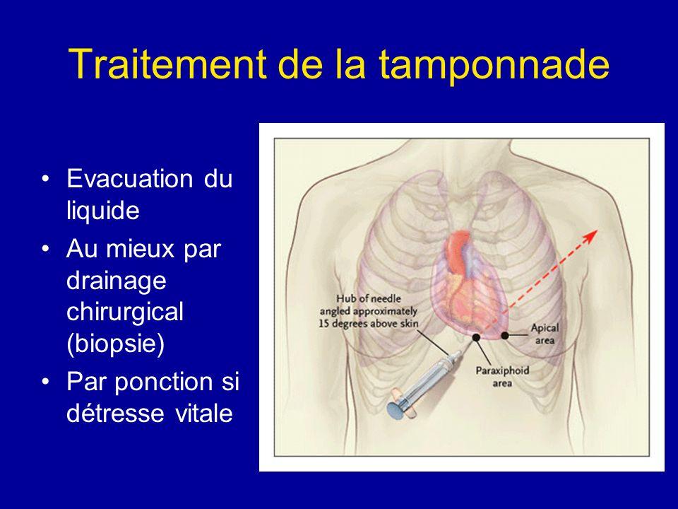 Traitement de la tamponnade Evacuation du liquide Au mieux par drainage chirurgical (biopsie) Par ponction si détresse vitale