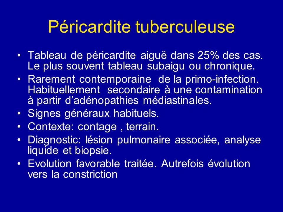Péricardite tuberculeuse Tableau de péricardite aiguë dans 25% des cas. Le plus souvent tableau subaigu ou chronique. Rarement contemporaine de la pri