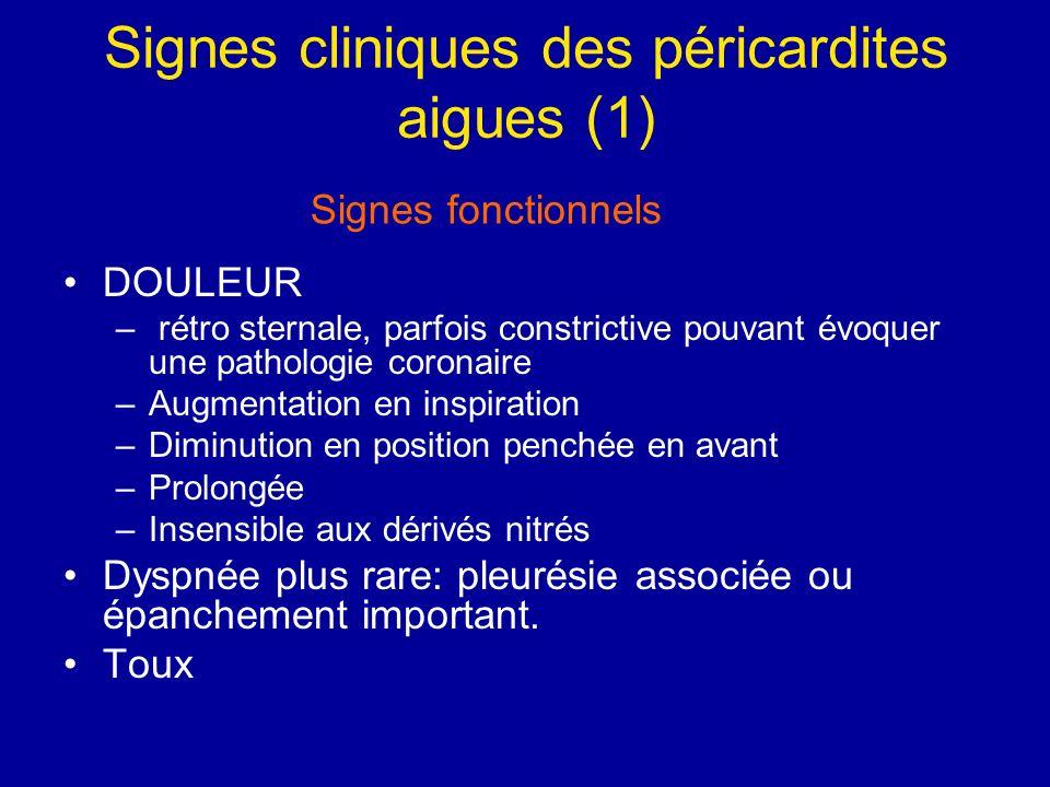 Signes cliniques des péricardites aigues (1) DOULEUR – rétro sternale, parfois constrictive pouvant évoquer une pathologie coronaire –Augmentation en