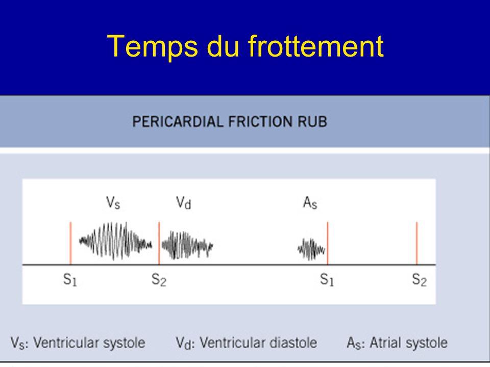 Signes ECG Sous décalage PQ, précoce et transitoire, bien visible en D1, D2, VL.