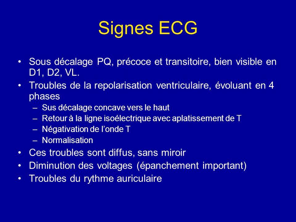 Signes ECG Sous décalage PQ, précoce et transitoire, bien visible en D1, D2, VL. Troubles de la repolarisation ventriculaire, évoluant en 4 phases –Su