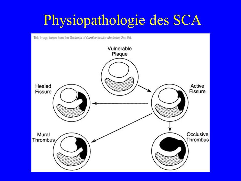 Physiopathologie des SCA