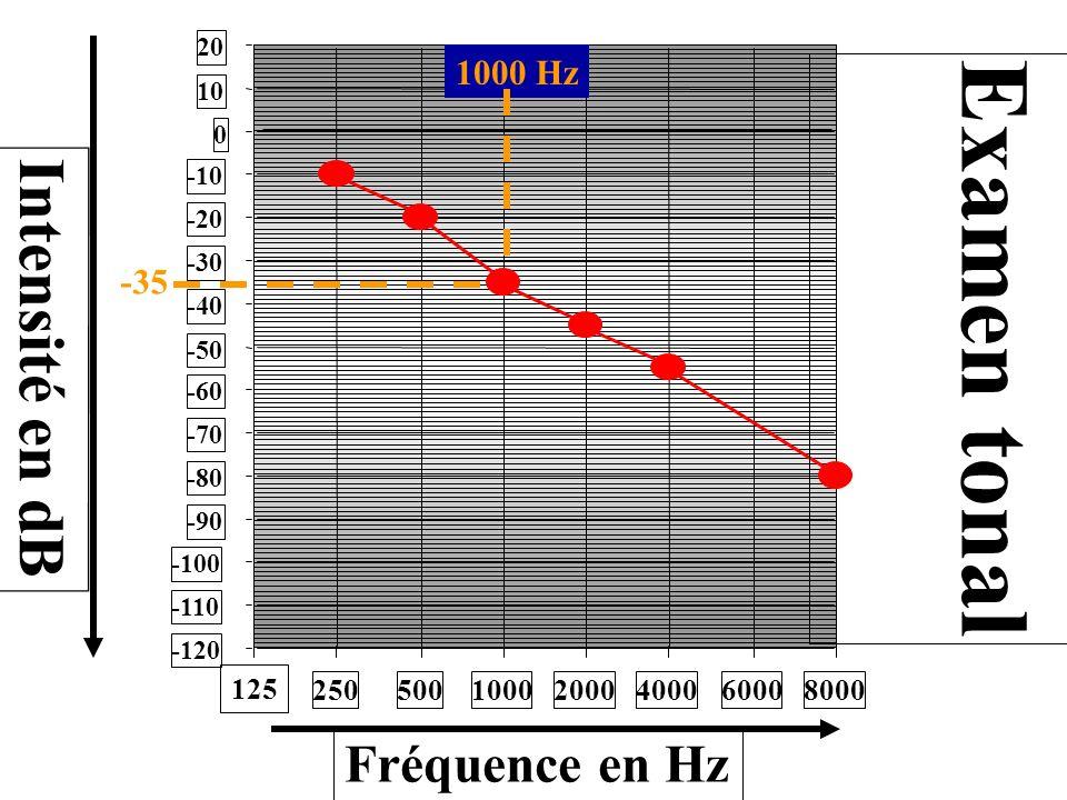 -120 -110 -100 -90 -80 -70 -60 -50 -40 -30 -20 -10 0 10 20 250500100020004000 6000 8000 125 Intensité en dB Fréquence en Hz -35 Examen tonal 1000 Hz