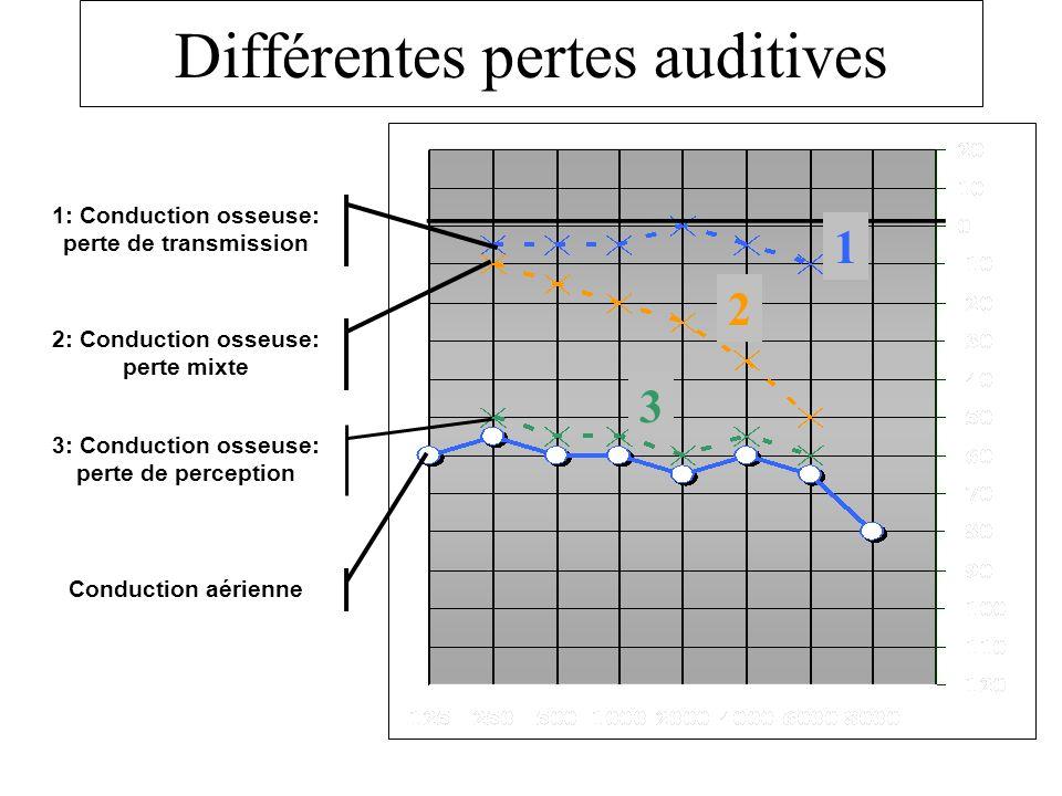 Différentes pertes auditives Conduction aérienne 3: Conduction osseuse: perte de perception 2: Conduction osseuse: perte mixte 1: Conduction osseuse: