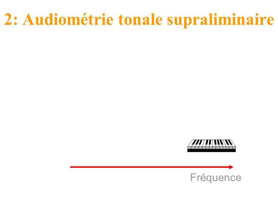 Fréquence 2: Audiométrie tonale supraliminaire Etude des distorsions du champ auditif résiduel.