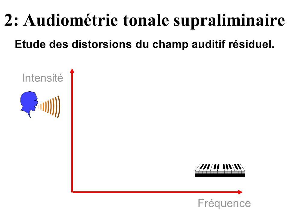 Fréquence Intensité 2: Audiométrie tonale supraliminaire Etude des distorsions du champ auditif résiduel.