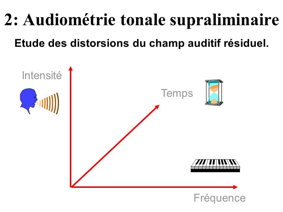 Fréquence Temps Intensité 2: Audiométrie tonale supraliminaire Etude des distorsions du champ auditif résiduel.