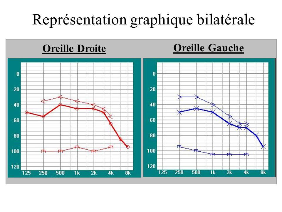 Représentation graphique bilatérale Oreille Droite Oreille Gauche