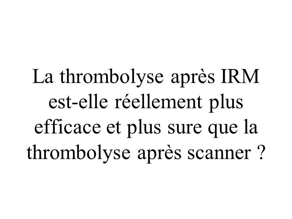 rtPA : 2 heures 40 Reperfusion sylvienne, mais pas carotidienne : dissection intra-pétreuse Récupération spectaculaire NIHSS 24 h : 4 NIHSS 7 jours :