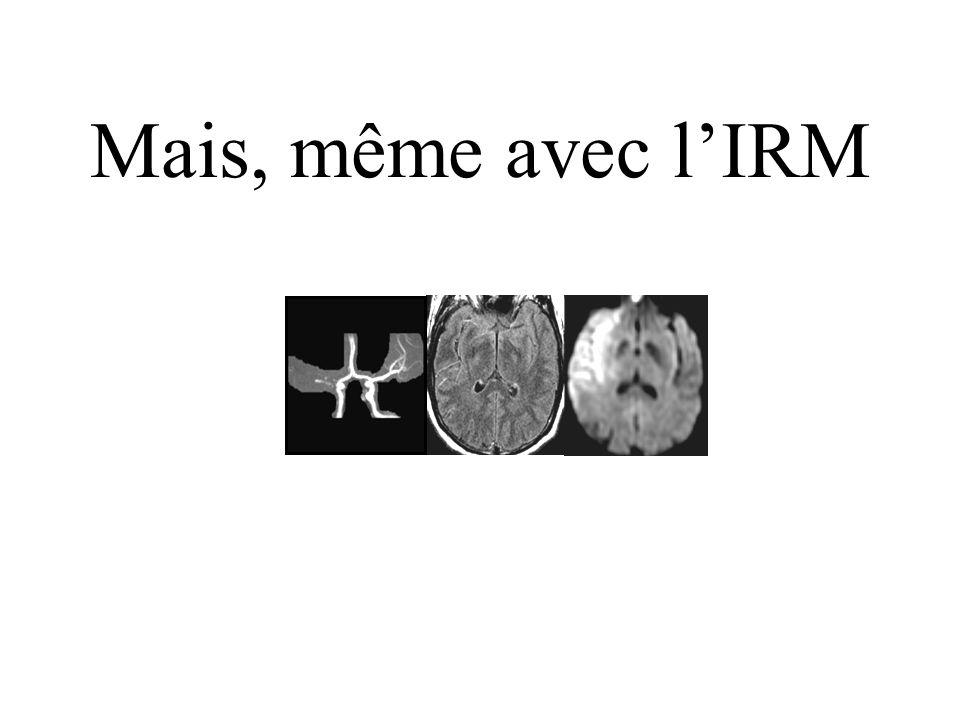 5101520 40 60 80 Sévérité initiale (NIHSS médian) Rankins 0-3 Patients (%) Bénéfice : 17-33 % NTT : 3-6 Salpêtrière (100) Parsons (19) Lyon (49) Scann
