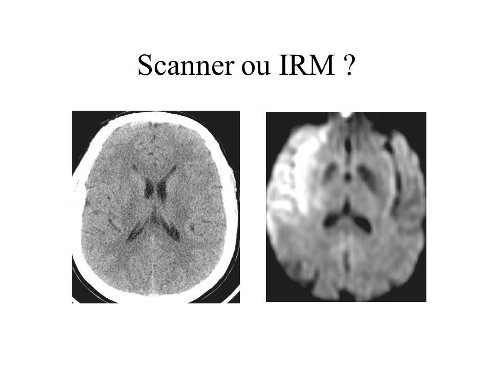 Patients (%) 5101520 0 10 20 30 Décès à 3 mois Sévérité initiale (NIHSS médian) Atlantis I 0-6 h ECASS I Scanner/placebo Surmortalité 9-16 % 1/6-11