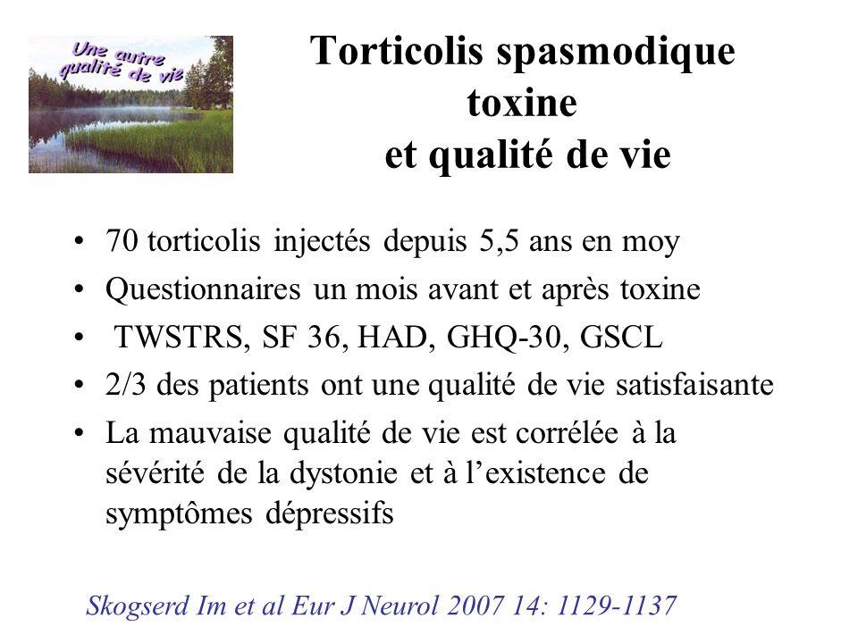Torticolis spasmodique toxine et qualité de vie 70 torticolis injectés depuis 5,5 ans en moy Questionnaires un mois avant et après toxine TWSTRS, SF 3
