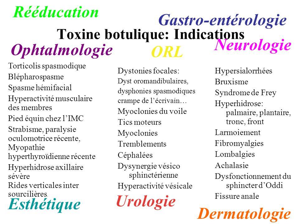 Toxine botulique: Indications Dystonies focales: Dyst oromandibulaires, dysphonies spasmodiques crampe de lécrivain… Myoclonies du voile Tics moteurs