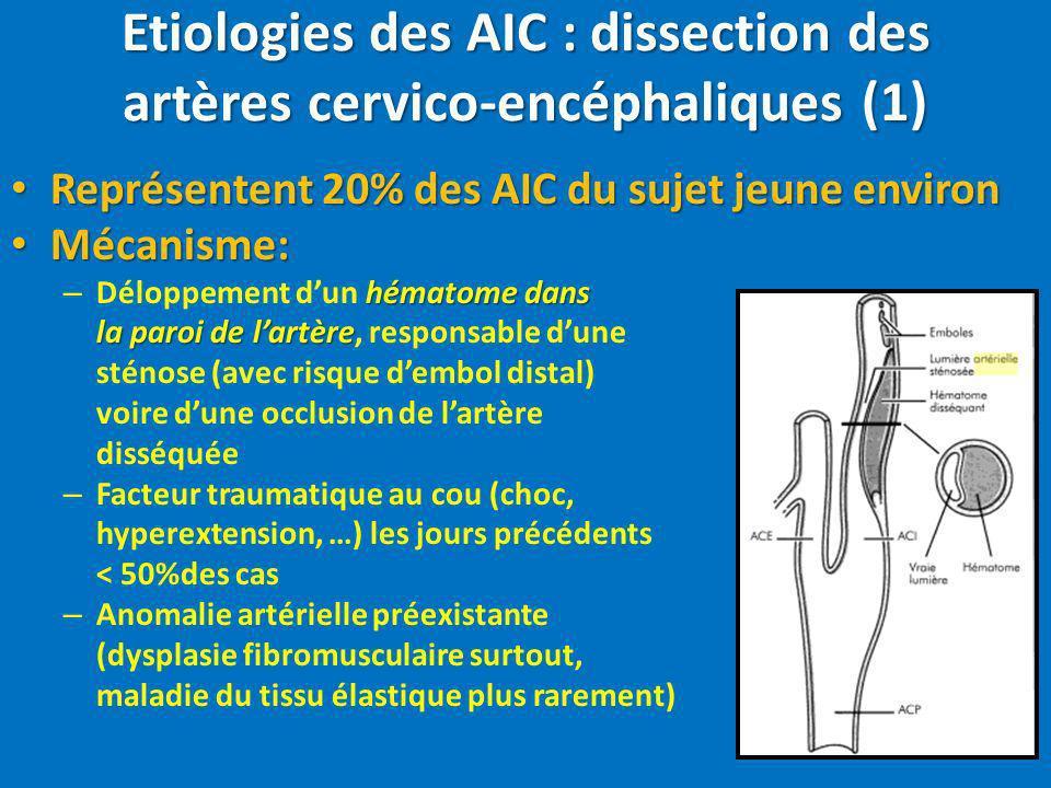 Etiologies des AIC : dissection des artères cervico-encéphaliques (1) Représentent 20% des AIC du sujet jeune environ Représentent 20% des AIC du suje