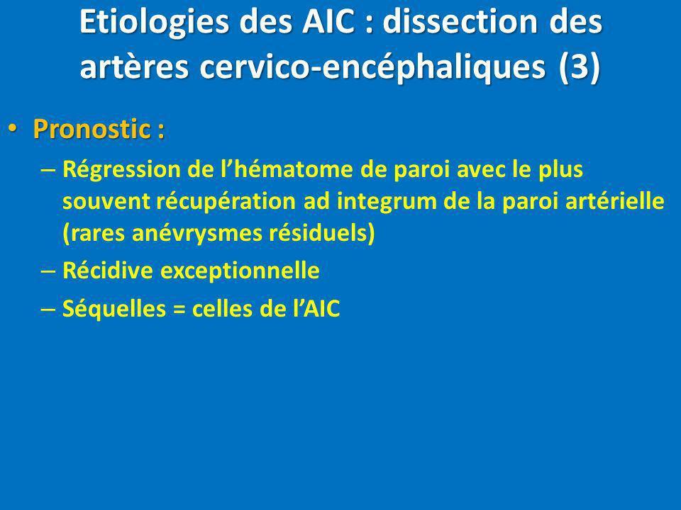 Etiologies des AIC : dissection des artères cervico-encéphaliques (3) Pronostic : Pronostic : – Régression de lhématome de paroi avec le plus souvent