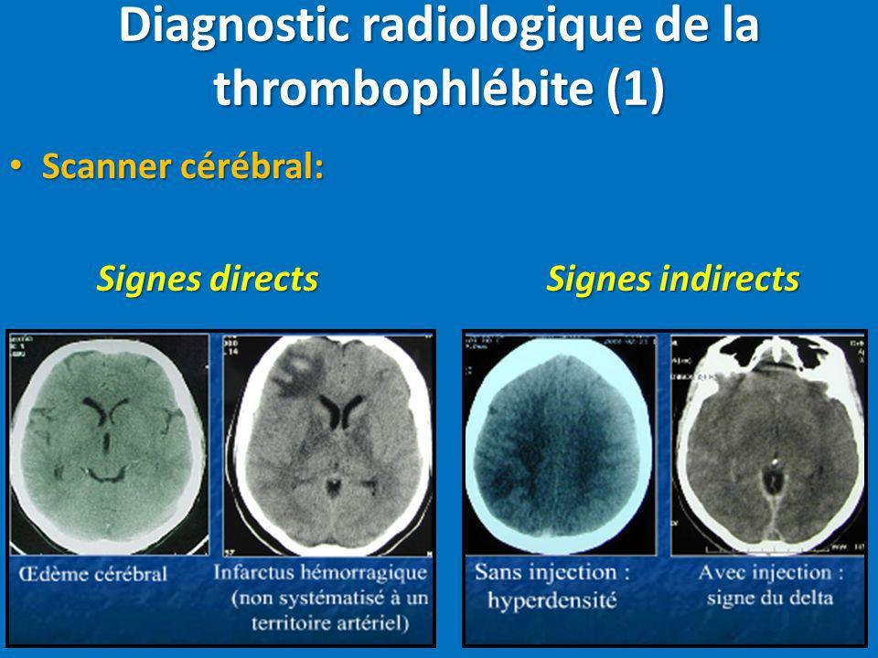 Scanner cérébral: Scanner cérébral: Signes directs Signes indirects Diagnostic radiologique de la thrombophlébite (1)