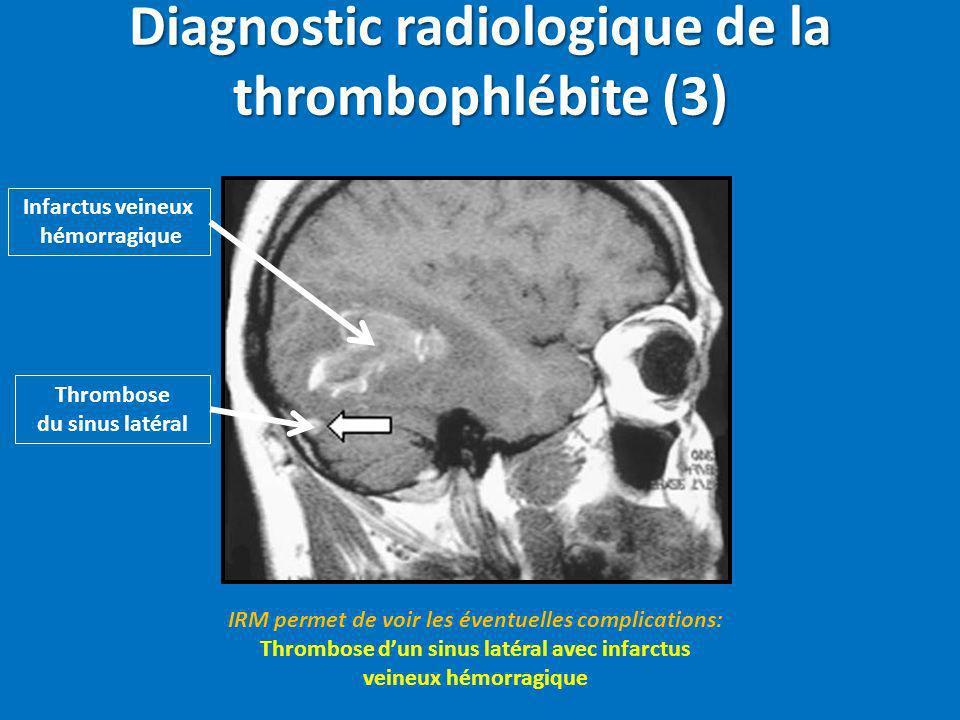 Diagnostic radiologique de la thrombophlébite (3) IRM permet de voir les éventuelles complications: Thrombose dun sinus latéral avec infarctus veineux