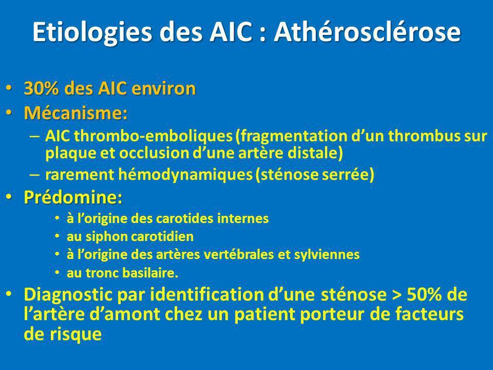 Etiologies des AIC : Athérosclérose 30% des AIC environ 30% des AIC environ Mécanisme: Mécanisme: – AIC thrombo-emboliques (fragmentation dun thrombus
