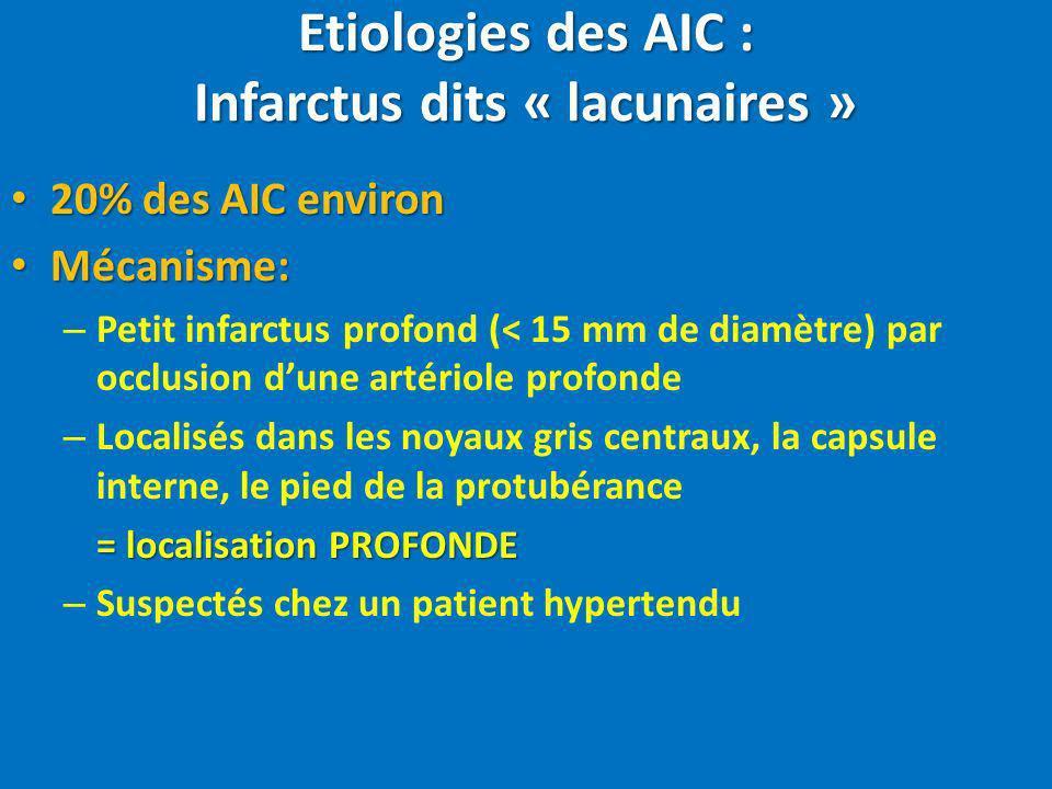 Etiologies des AIC : Infarctus dits « lacunaires » 20% des AIC environ 20% des AIC environ Mécanisme: Mécanisme: – Petit infarctus profond (< 15 mm de