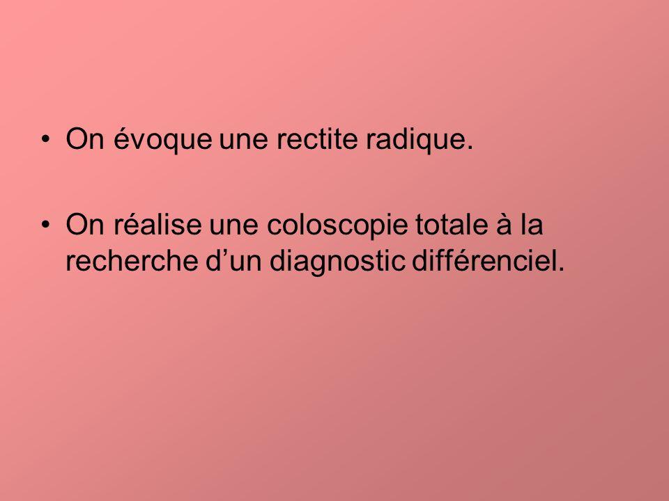 On évoque une rectite radique. On réalise une coloscopie totale à la recherche dun diagnostic différenciel.
