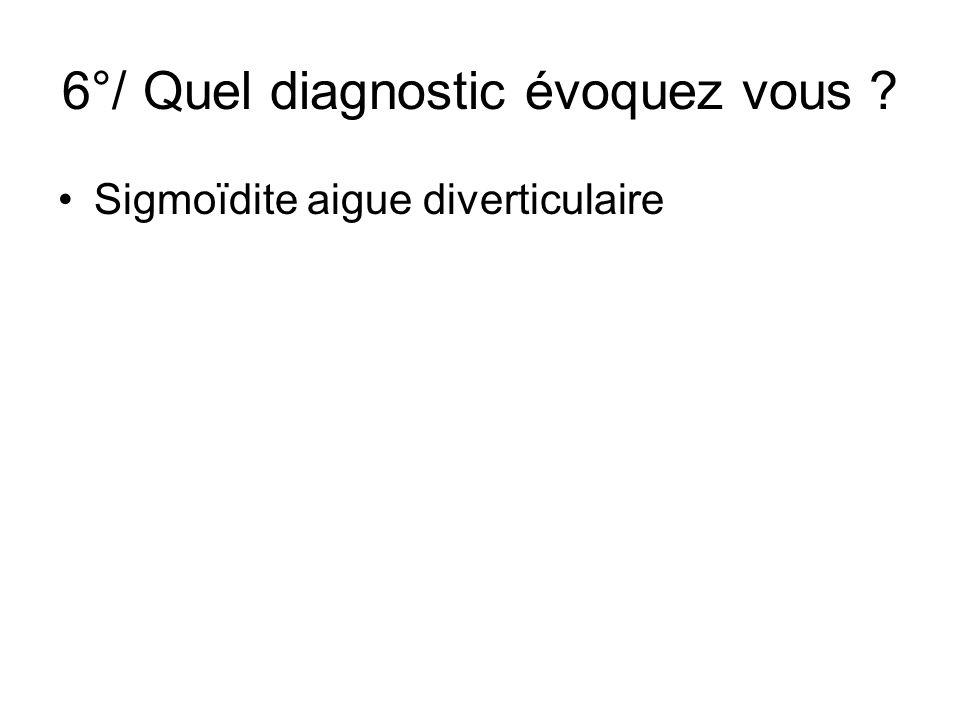 6°/ Quel diagnostic évoquez vous ? Sigmoïdite aigue diverticulaire