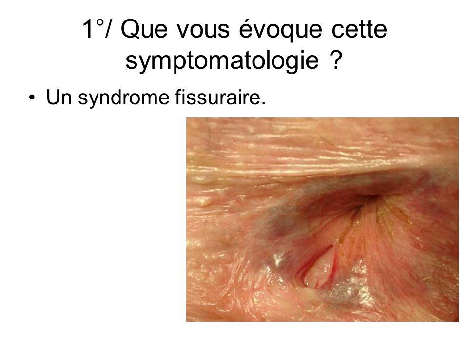 1°/ Que vous évoque cette symptomatologie ? Un syndrome fissuraire.