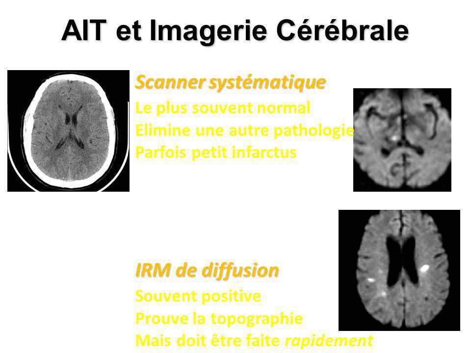 AIT et Imagerie Cérébrale Scanner systématique Le plus souvent normal Elimine une autre pathologie Parfois petit infarctus IRM de diffusion Souvent po