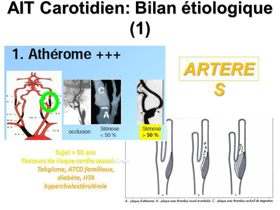 AIT Carotidien: Bilan étiologique (1) Sujet > 50 ans Facteurs de risque cardio vasculaires: Tabgisme, ATCD familiaux, diabète, HTA diabète, HTAhyperch