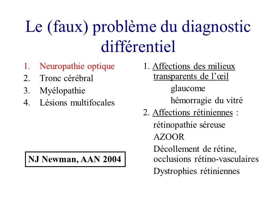 Le (faux) problème du diagnostic différentiel 1.Neuropathie optique 2.Tronc cérébral 3.Myélopathie 4.Lésions multifocales 1.