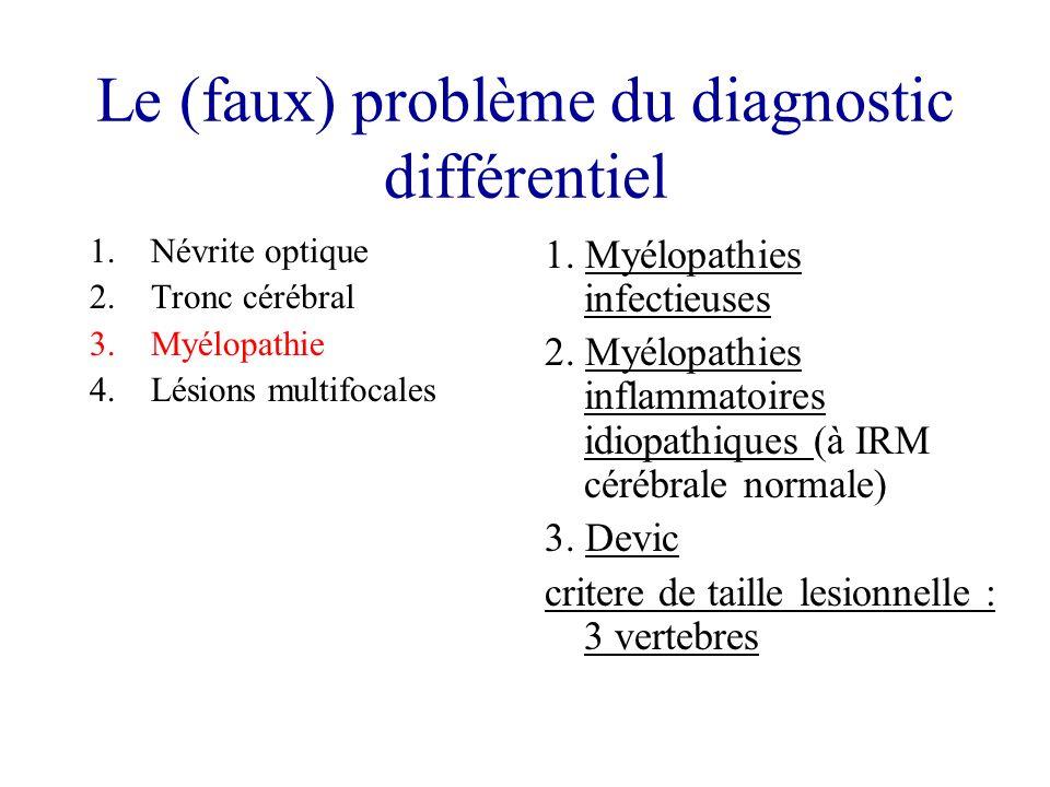 Le (faux) problème du diagnostic différentiel 1.Névrite optique 2.Tronc cérébral 3.Myélopathie 4.Lésions multifocales 1. Myélopathies infectieuses 2.