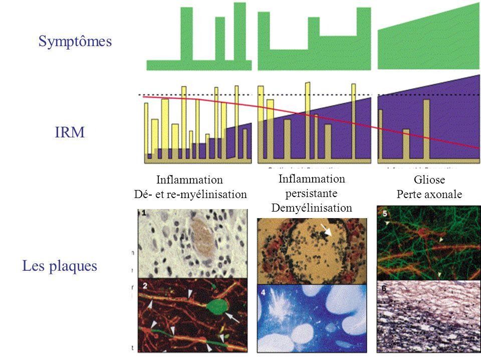 Inflammation Dé- et re-myélinisation Inflammation persistante Demyélinisation Gliose Perte axonale IRM Symptômes Les plaques