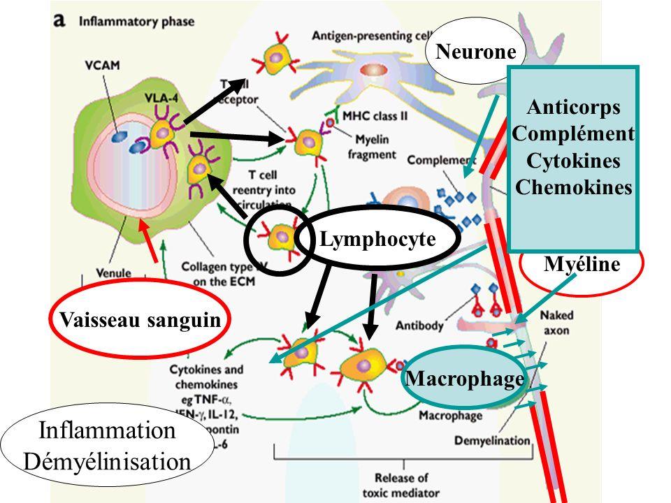 Inflammation Démyélinisation Myéline Neurone Vaisseau sanguin Lymphocyte Macrophage Anticorps Complément Cytokines Chemokines