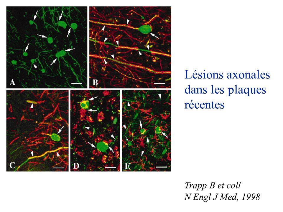 Lésions axonales dans les plaques récentes Trapp B et coll N Engl J Med, 1998