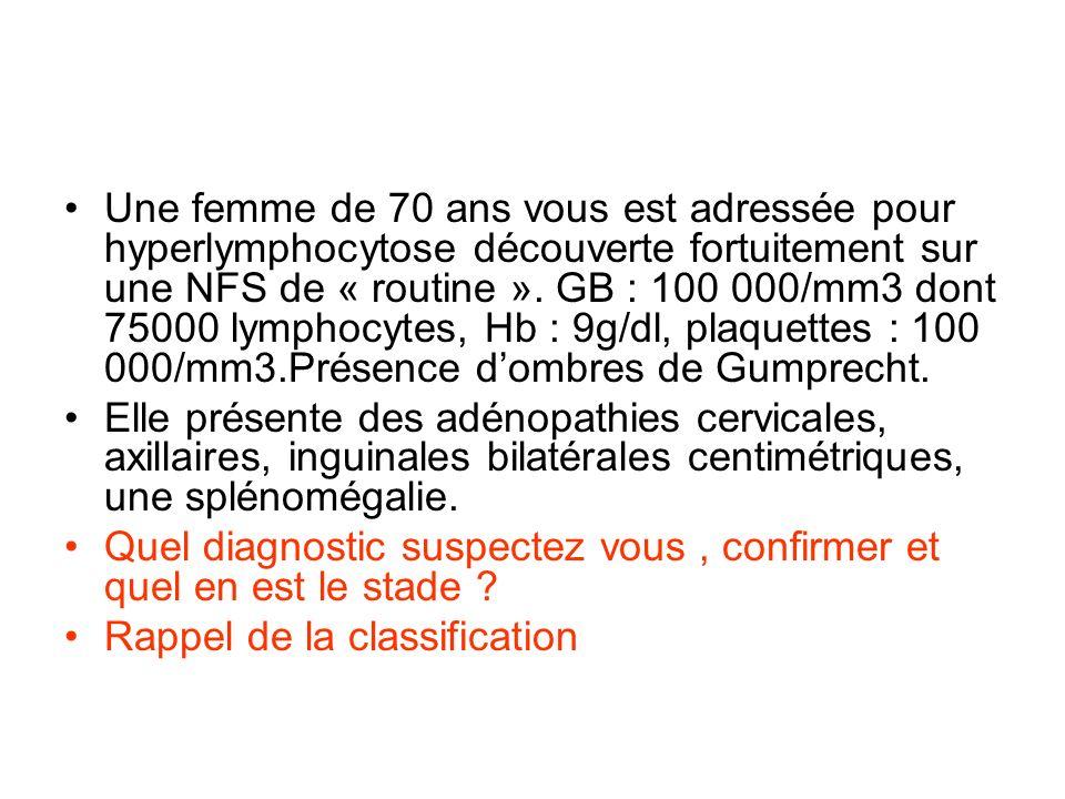 Une femme de 70 ans vous est adressée pour hyperlymphocytose découverte fortuitement sur une NFS de « routine ». GB : 100 000/mm3 dont 75000 lymphocyt