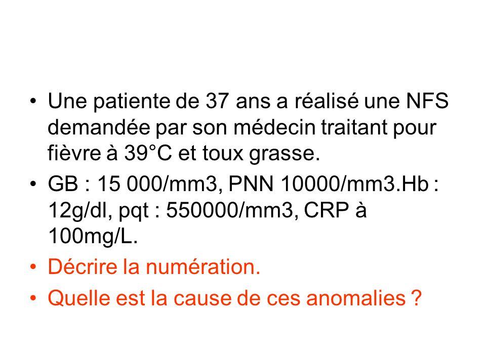 Une patiente de 37 ans a réalisé une NFS demandée par son médecin traitant pour fièvre à 39°C et toux grasse. GB : 15 000/mm3, PNN 10000/mm3.Hb : 12g/