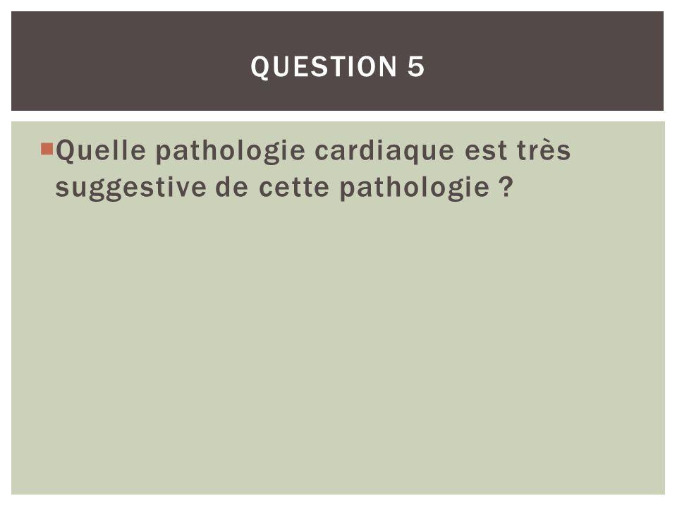 Quelle pathologie cardiaque est très suggestive de cette pathologie ? QUESTION 5