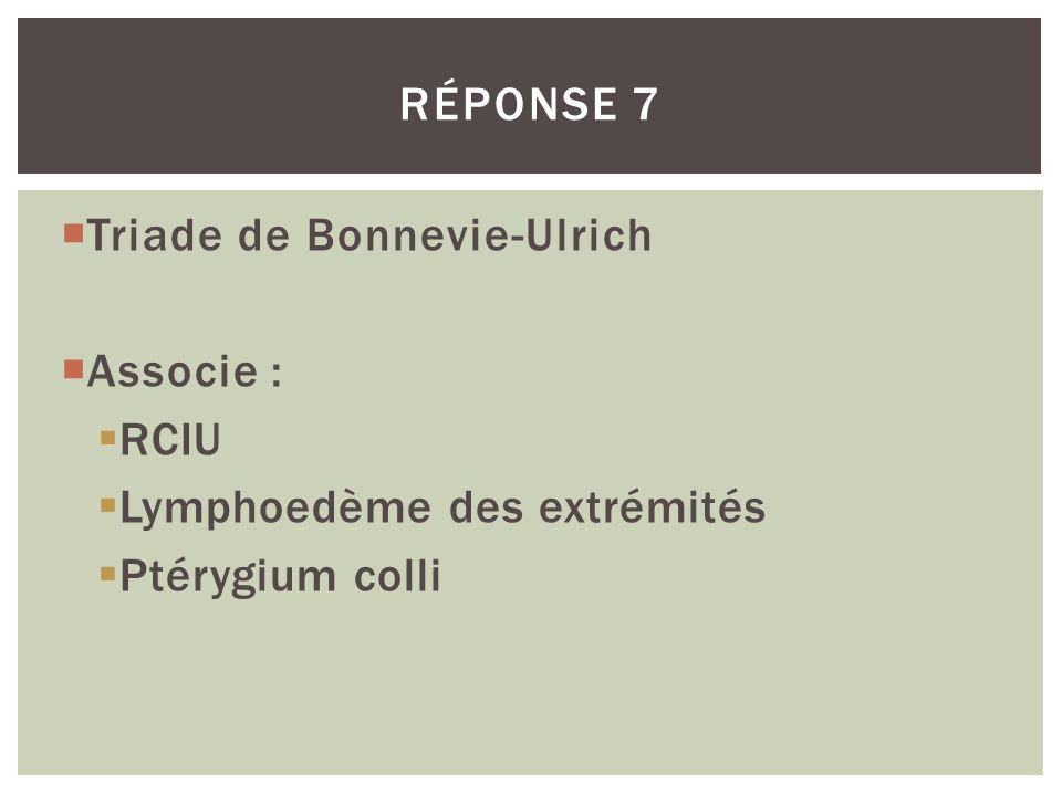 Triade de Bonnevie-Ulrich Associe : RCIU Lymphoedème des extrémités Ptérygium colli RÉPONSE 7