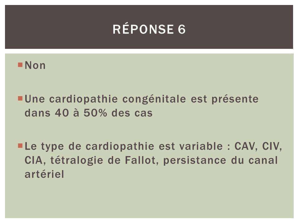 Non Une cardiopathie congénitale est présente dans 40 à 50% des cas Le type de cardiopathie est variable : CAV, CIV, CIA, tétralogie de Fallot, persis